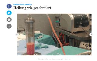 Stammzellen Körperfett Schweriner Volkszeitung