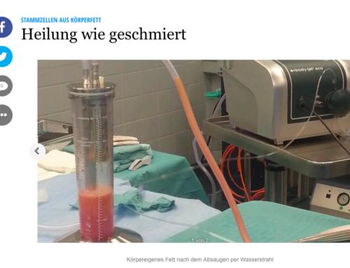 Schweriner Volkszeitung: Heilung wie geschmiert mit Stammzellen aus Körperfett