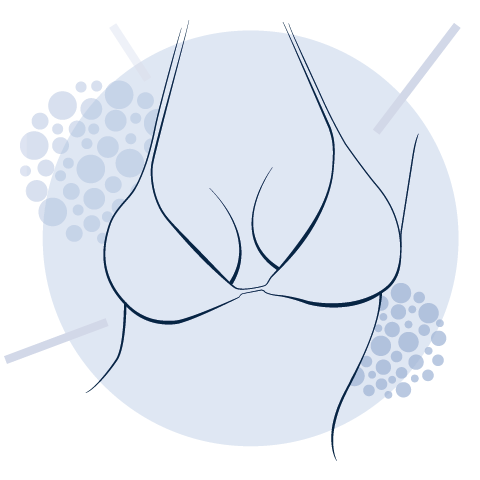 Aquashape® Volume Breast Breastreconstruction